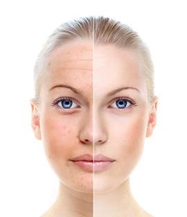 IPL-Skin-Rejuvenation-Before-After